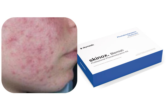 Treatment for skin with acne